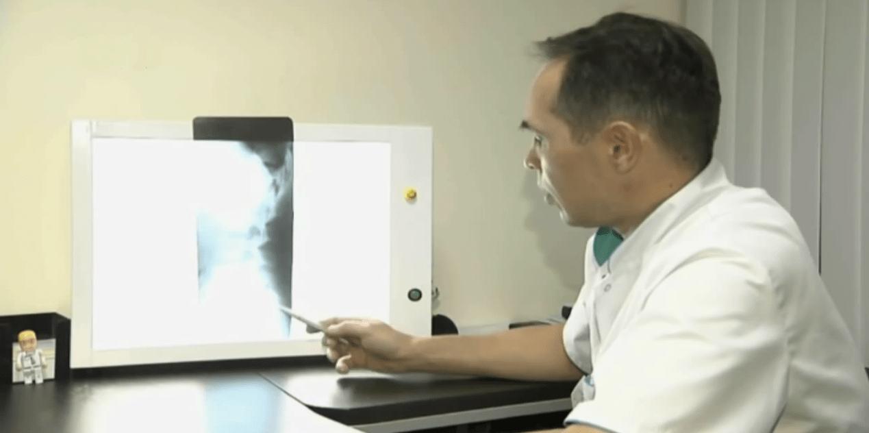 X-ray діагностика